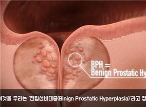 前列腺疾病