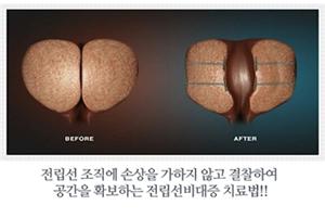 如果您有可疑的前列腺增生