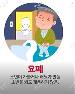 前列腺疾病的早期治疗很重要