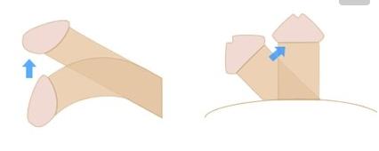 三、进行矫正手术的最佳时间:    尿道下裂是一种先天性畸形,有时在一个家族中可连续几代出现这种先天性发育异常。轻度尿道下裂者,尿道开口于阴茎冠状沟,阴茎本身不弯曲或者轻度弯曲,幼年时常被家长忽略,长大后也不影响性功能,故不需治疗。严重的尿道下裂者,尿道开口可在阴茎阴囊交界处,个别甚至在会阴部,缺损的尿道部分被纤维带所替代,阴茎短小而扁平,明显或重度向下弯曲,成年后不能性交。同时,由于尿道开口位置过后,射精在阴道外面,所以无生育能力,必须手术矫正。