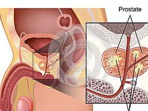 前列腺问题的经典症状就是尿频尿急