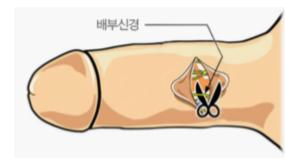 韩国试探他医院对于早泄患者的综合疗法:背神经阻断术+系带切除术+真皮生物补片移植术