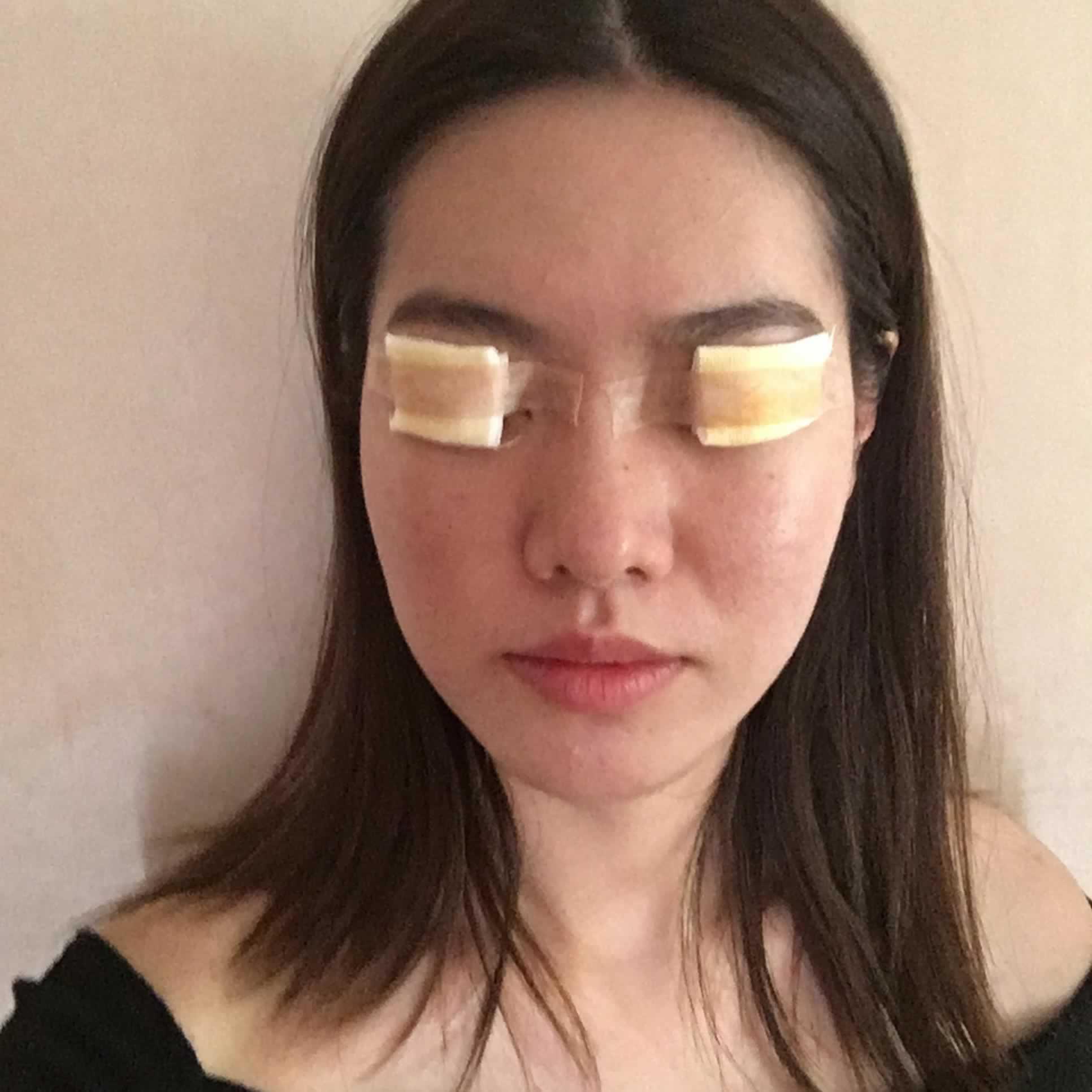 还有的就是不知道是不是贴双眼皮的原因我的眼睛上面眼睛皮越发看着下垂的厉害
