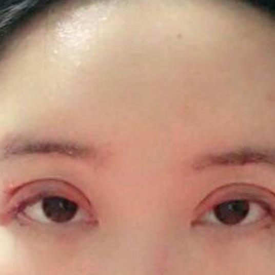 我现在切开双眼皮已经三天啦