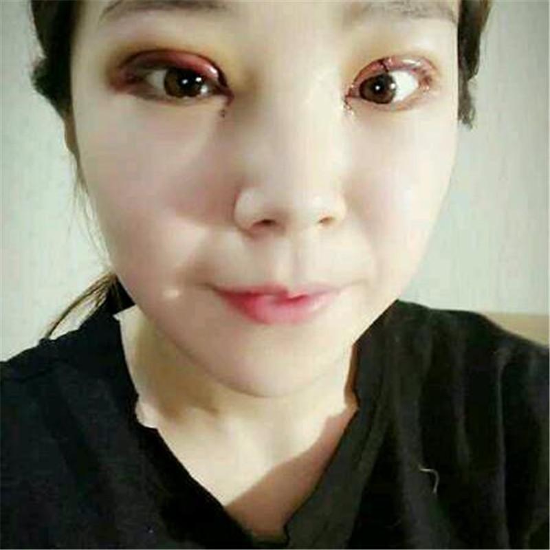 以前我眼睛的形状不是很好看