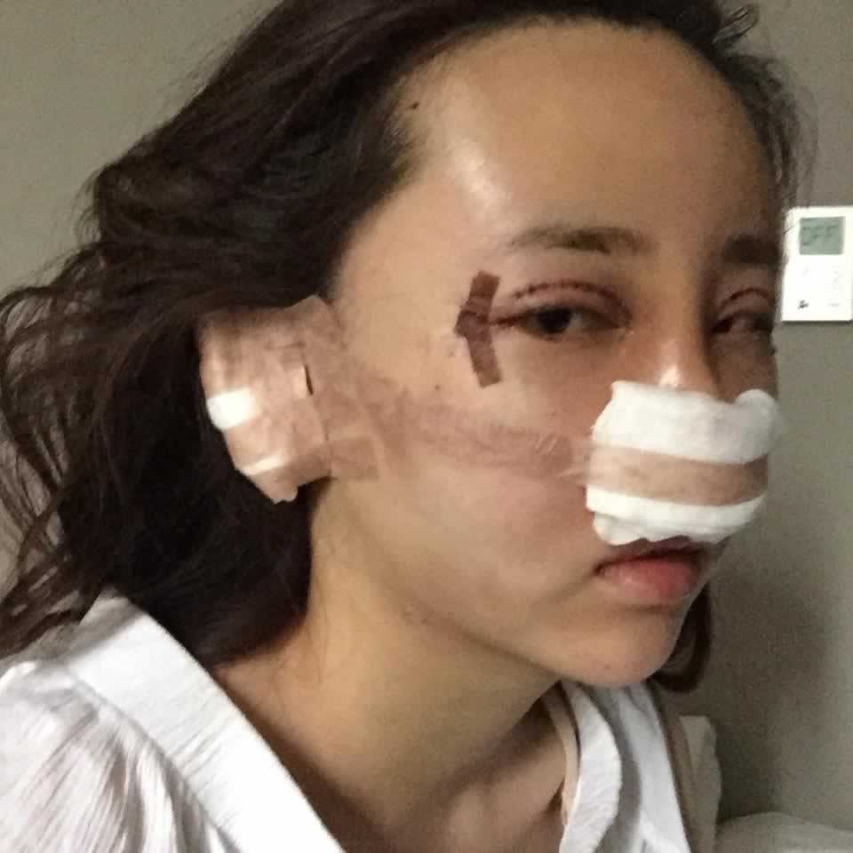 【开内眼角第0天】手术的时候眼睛和鼻子是局麻会有一点点的疼