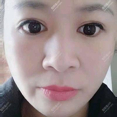 你们看看我的双眼皮
