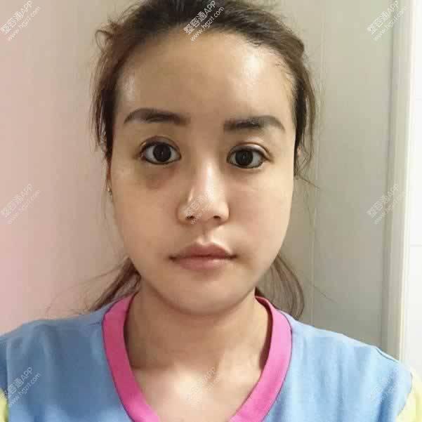 手术后第3天第4天的时候脸是最肿的