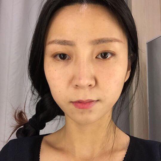 今天幸好有圈圈麻麻跟她朋友一起陪我去才找到佳伦韩医院