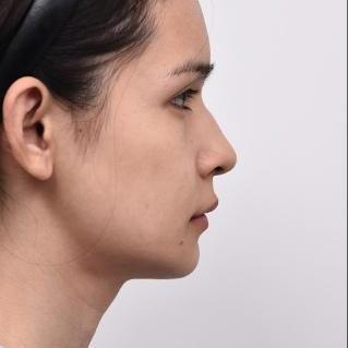也算是很常见的一种鼻型了