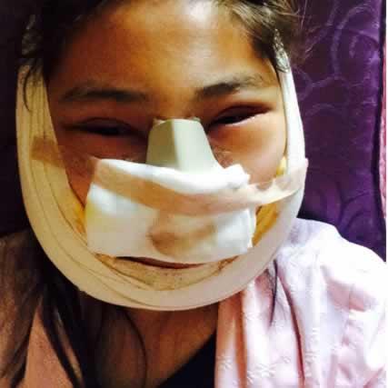 【V-LINE瓜子脸手术第8天】我做的是双眼皮手术和颧骨手术还有vline手术