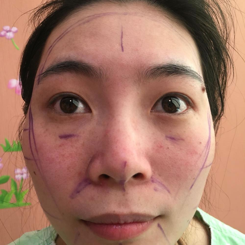 今天是手术后的整整四个月了!见到我的朋友都说我脸小了很多