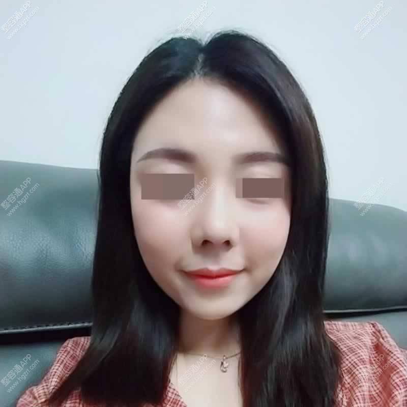 【鼻部多项第60天】手术已有2个月了侧面鼻型看着特别漂亮