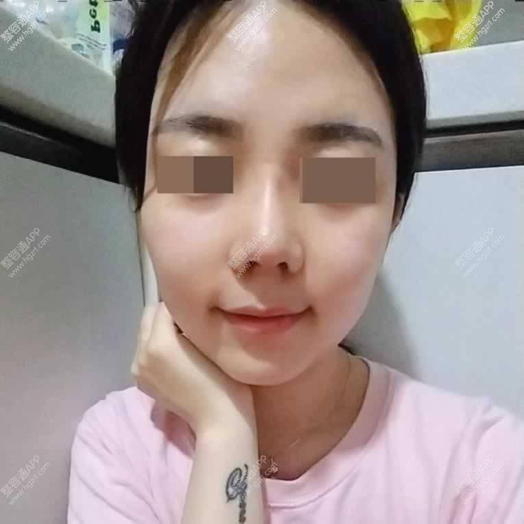 【鼻部多项第31天】鼻子手术1个月了消肿也差不多了