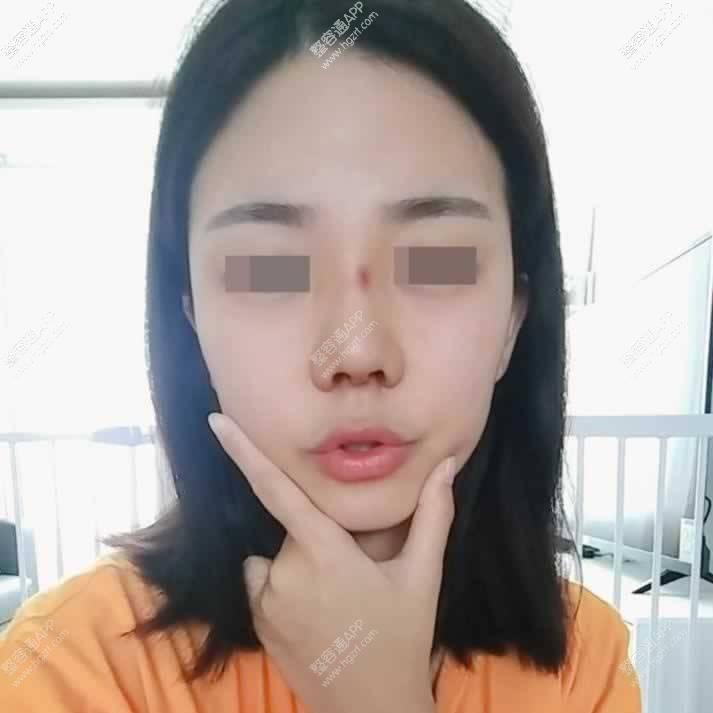【鼻部多项第14天】手术做了有两周了鼻梁上的是淤青哦