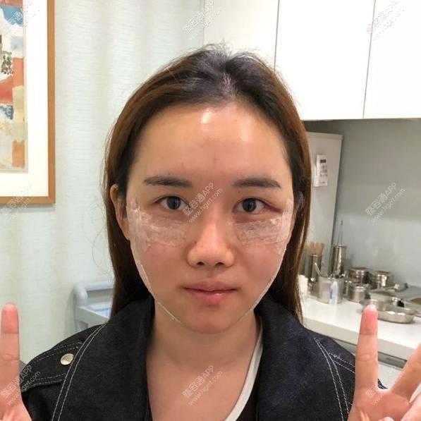 脸和她讲的手术经历马上都心动了