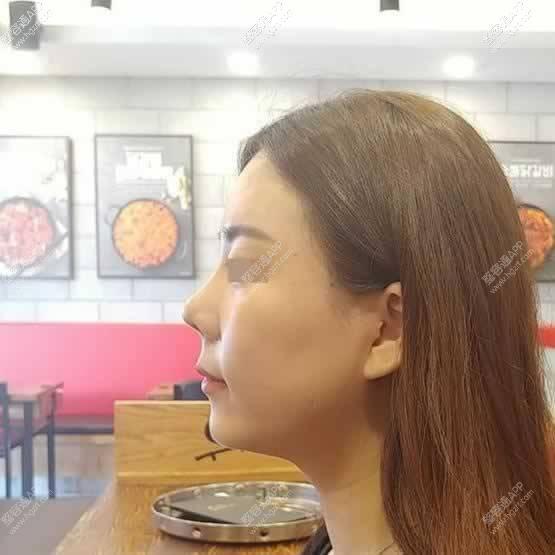 【鼻部多项第80天】鼻子术后快3个月了