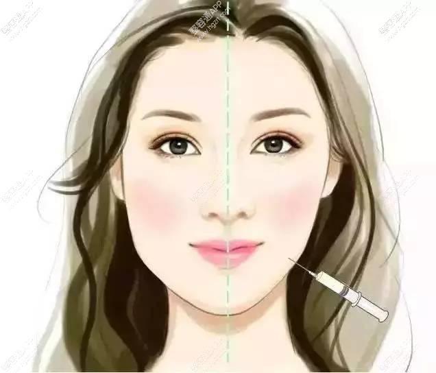 女孩儿打瘦脸针