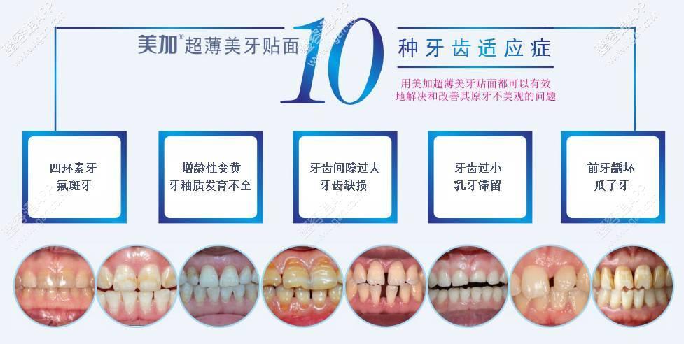 中重度氟斑牙,增龄性变黄,牙釉质发育不全,牙间隙过大,牙齿缺损,乳牙