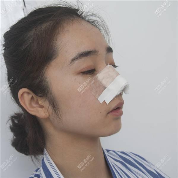 整容手术过程图片_最丑的几种鼻子图片么,最起码几十年是可以的_整容通app