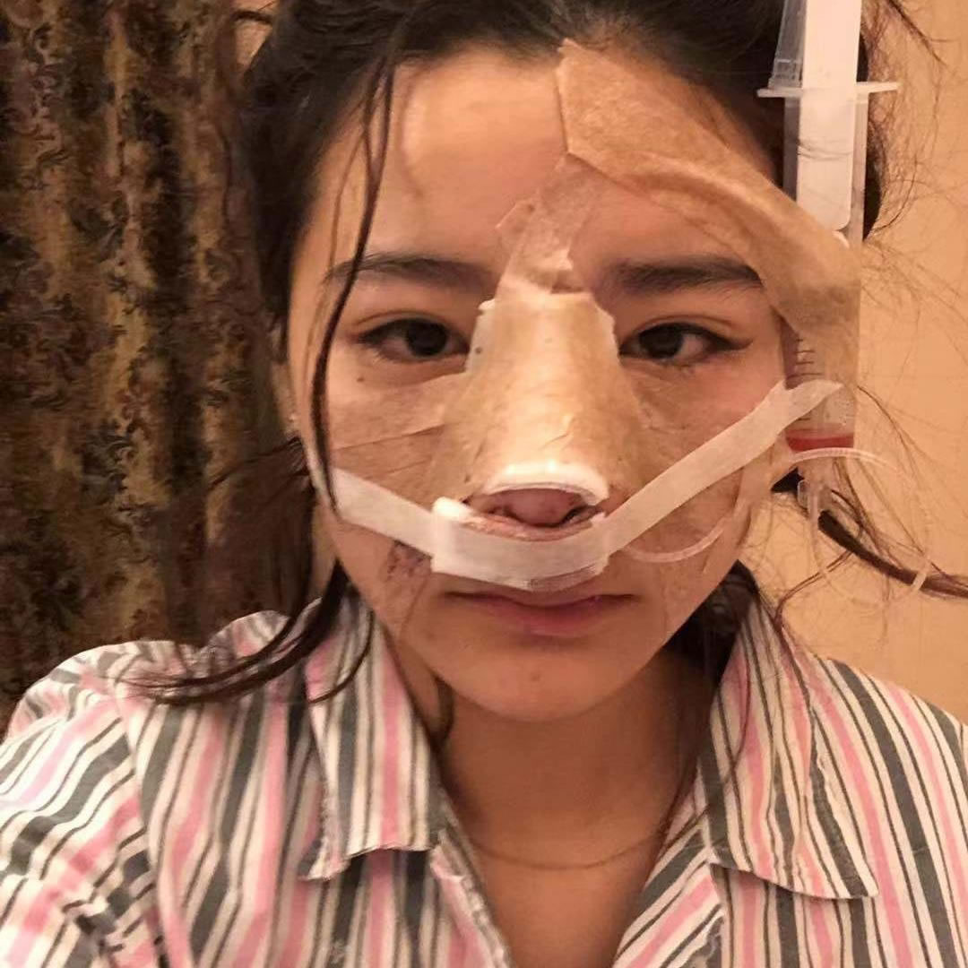 之前是在另一家医院做的鼻子