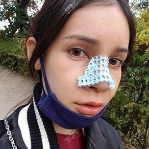 今天的渗血量我感觉比昨天少一些了~这一天都关注着鼻子