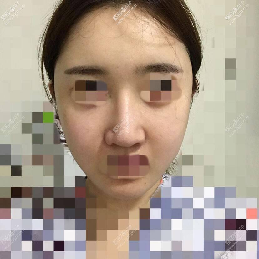 后来去手术室消毒的时候院长拿镜子让我看了看我的脸