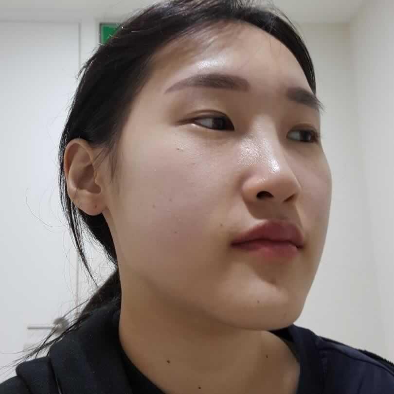 我做的手术是下颌角切除和下巴肌肉捆绑