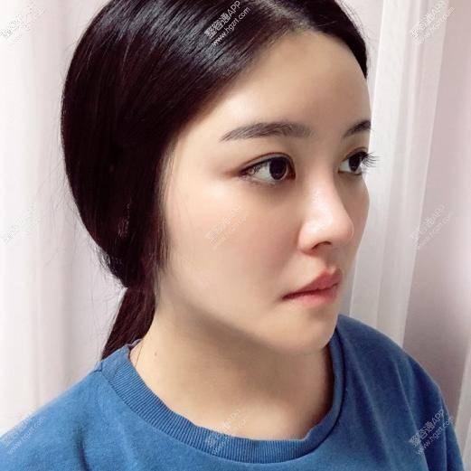 虽然说现在去韩国过轮廓手术的人真的很多很多~