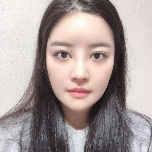 韩国整形医院轮廓整形手术术后14天~